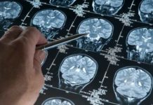 XANAMEM DRUG: A STEP FORWARD FOR ALZHEIMER'S DISEASE   Aged Care Weekly