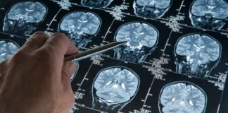 XANAMEM DRUG: A STEP FORWARD FOR ALZHEIMER'S DISEASE | Aged Care Weekly