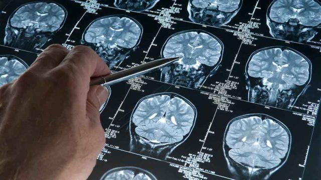 XANAMEM DRUG: A STEP FORWARD FOR ALZHEIMER'S DISEASE